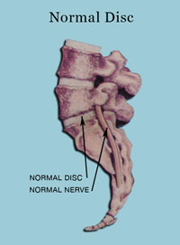 Normal Disc - Stages Of Disc Derangement