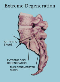 Extreme Degeneration - Stages Of Disc Derangement