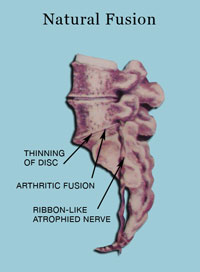 Natural Fusion - Stages Of Disc Derangement